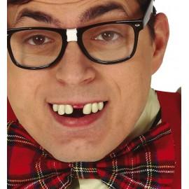 Denti Rotti con Termoplastica